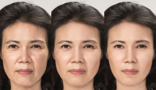 Facelift transformation