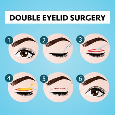 Suture Method vs Cutting Method For Double Eyelid Surgery: Factors