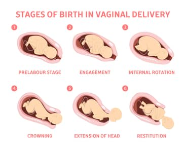 Baby Birth stages infographics