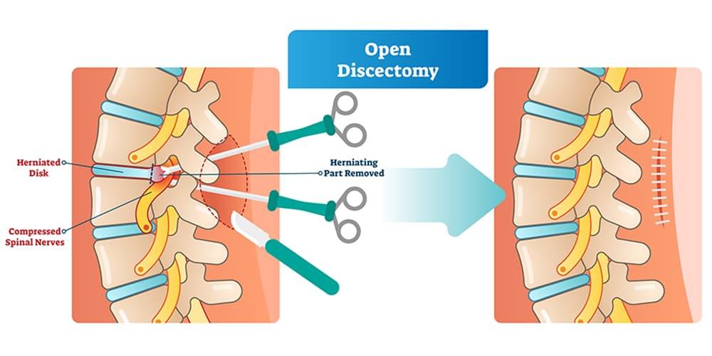 open back surgery singapore