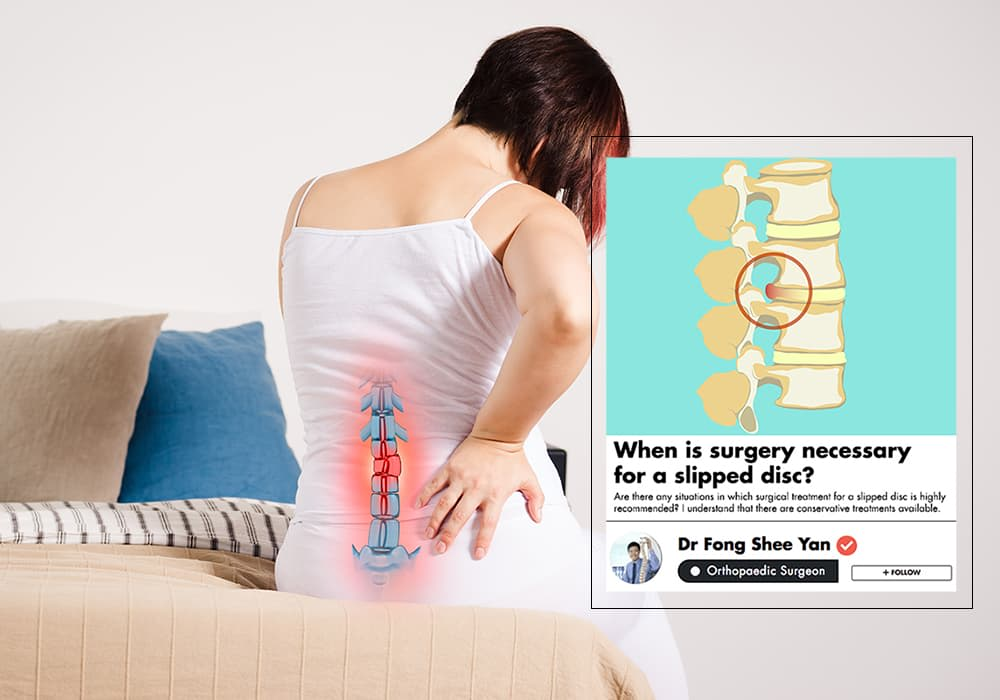 When Do You Need Surgery For A Slipped Disc? A Spine Doctor Explains undefined