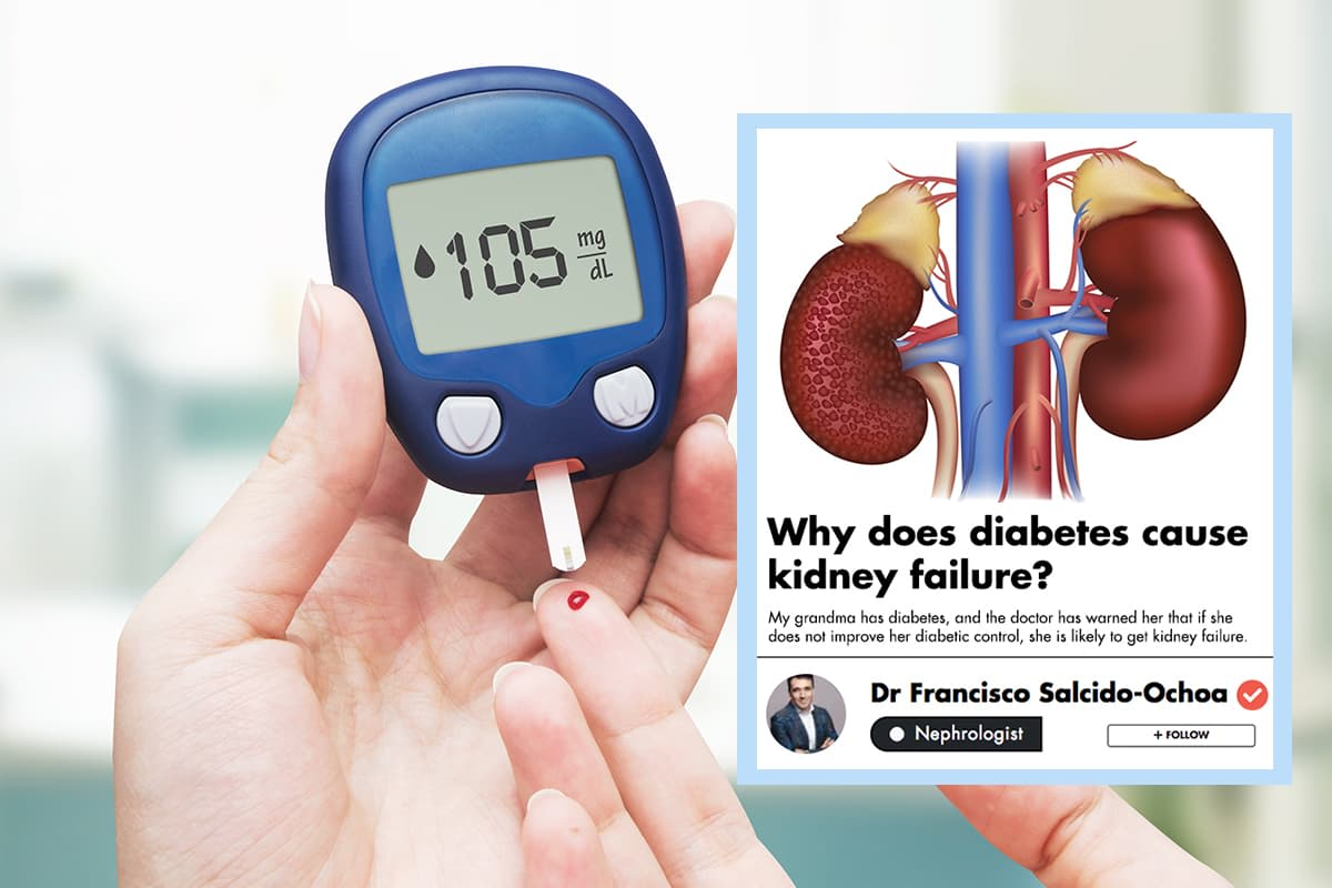 When Does Diabetes Affect Your Kidneys And How Do You Manage It? undefined