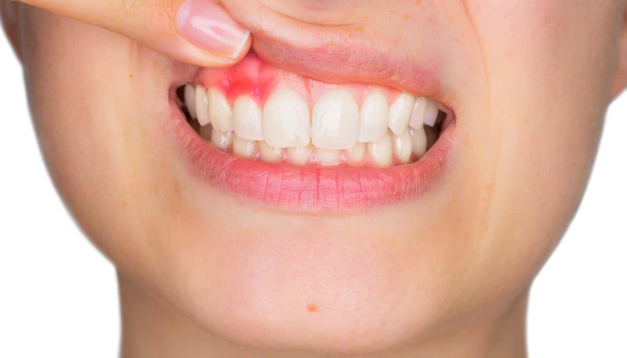 unhealthy gums causes bad breath