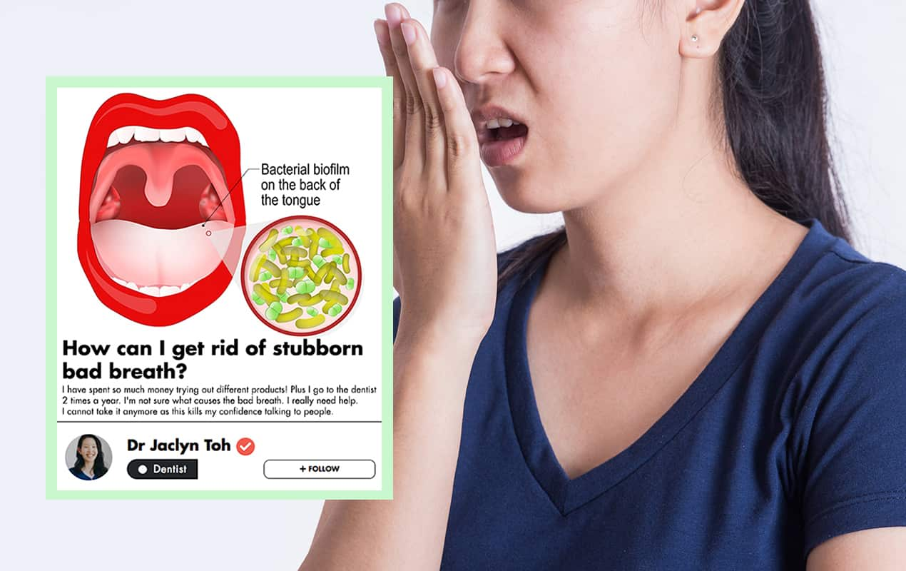 This Singaporean Dentist Shares Her Best Tips On How To Get Rid Of Stubborn Bad Breath! undefined