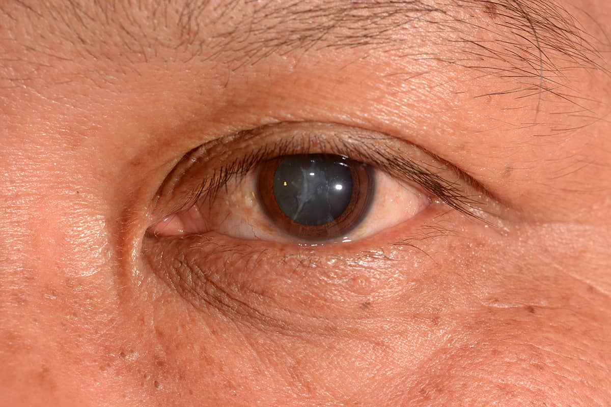 a mans left eye