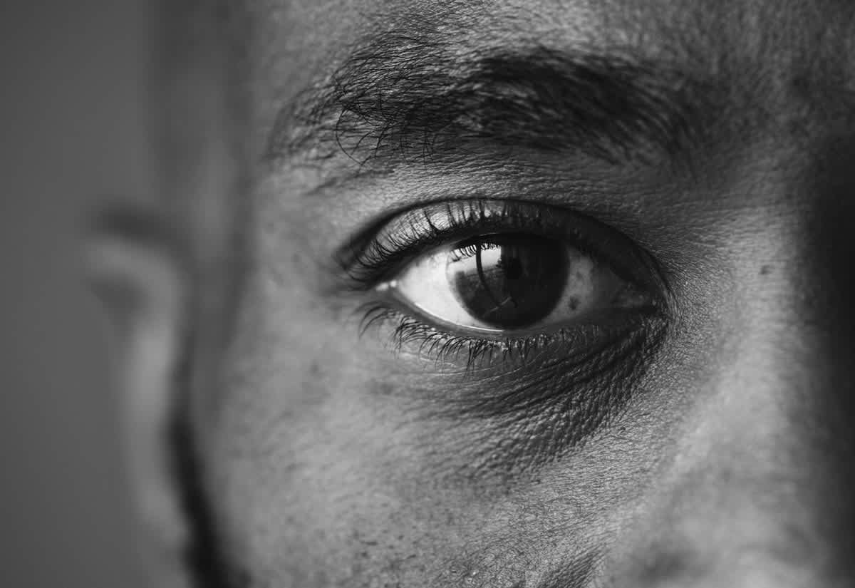 Types of Cataracts, Prevention, and What Happens After Surgery undefined