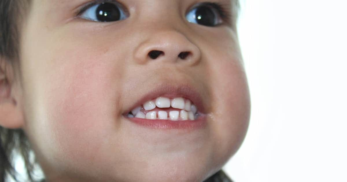 child showing her teeth and jaw