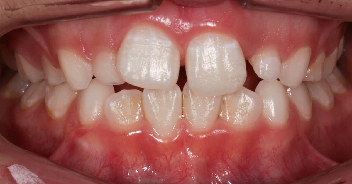 a child's teeth closeup