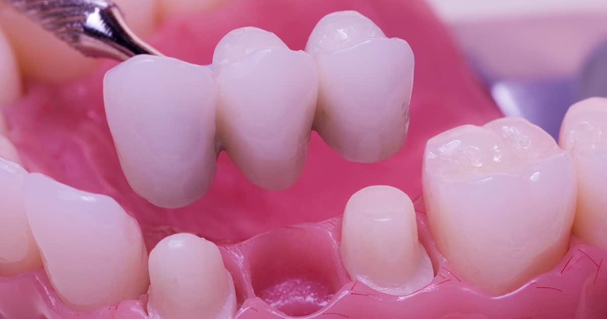 dental bridge replacing one tooth