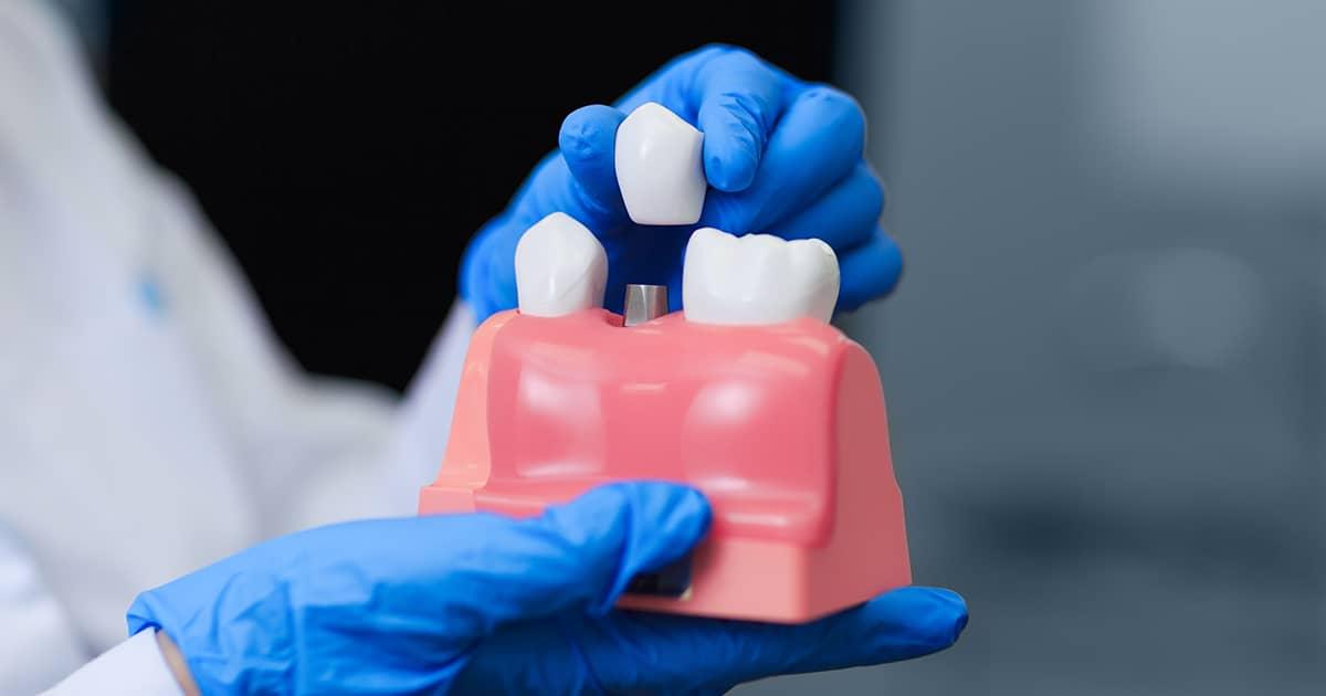 model of a dental implant