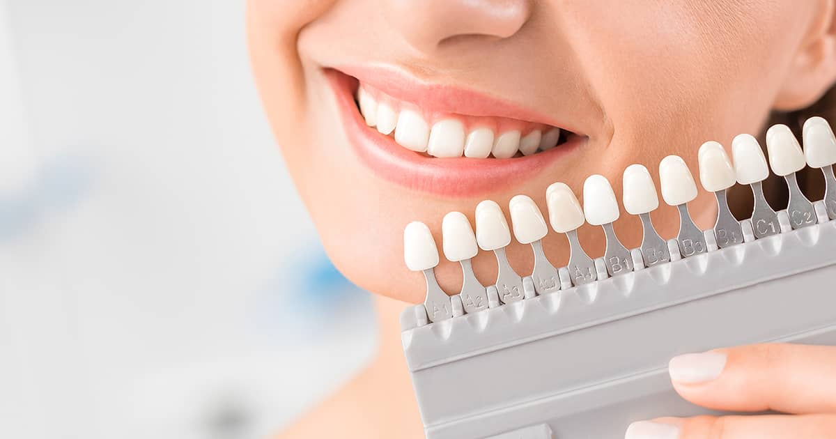 tooth colour check before veneers