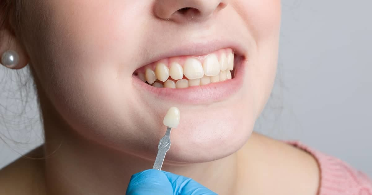 When Can Protruding Front Teeth Be Fixed With Veneers? undefined