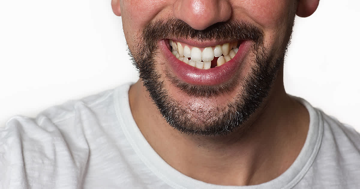 mouth with a missing front tooth