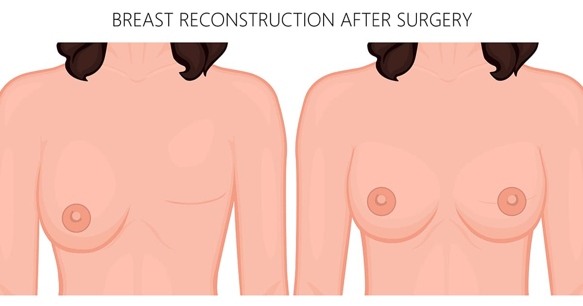 illustration of a breast reconstruction procedure