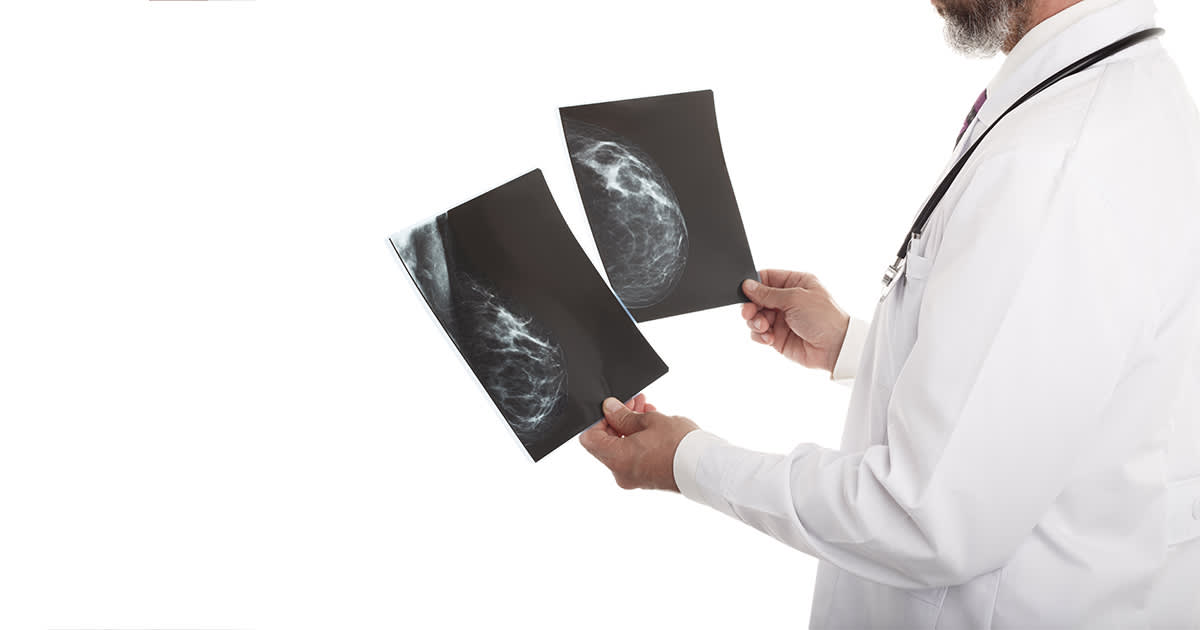 a doctor holding up breast x-rays