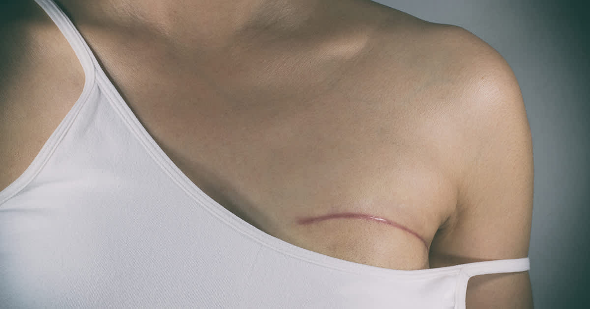 a woman with a surgical scar on her breast