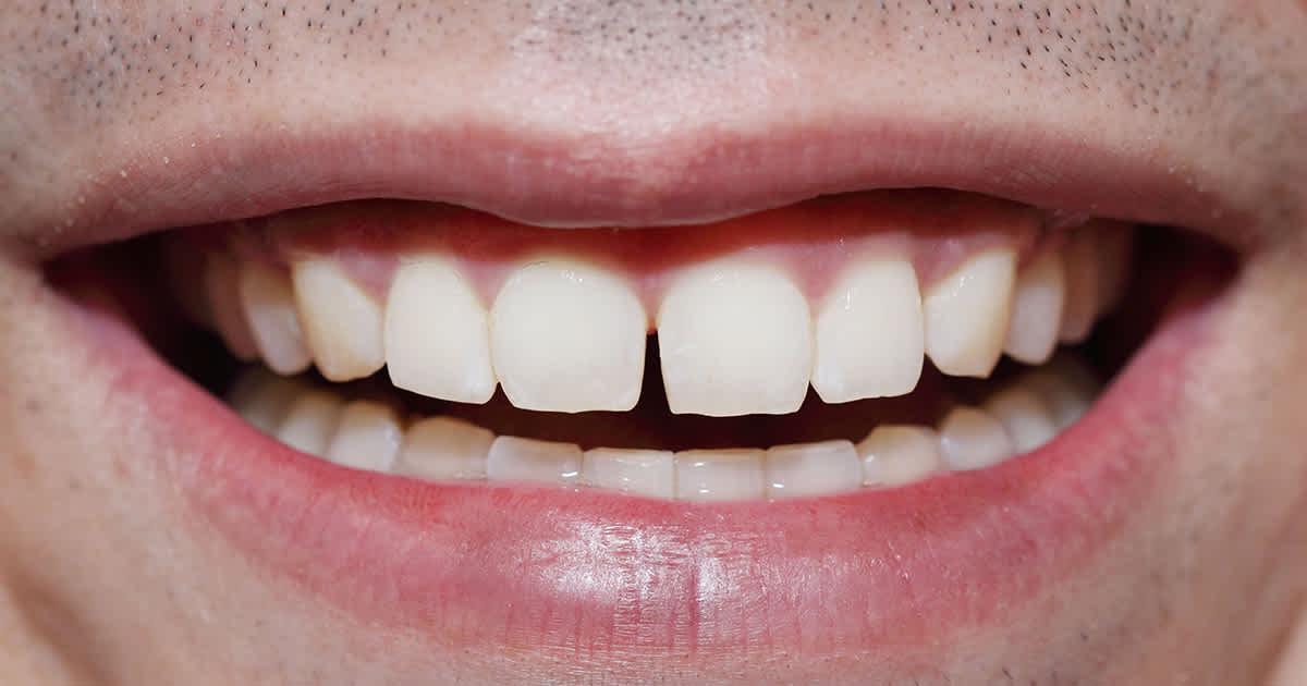 closeup of a man with a tooth gap