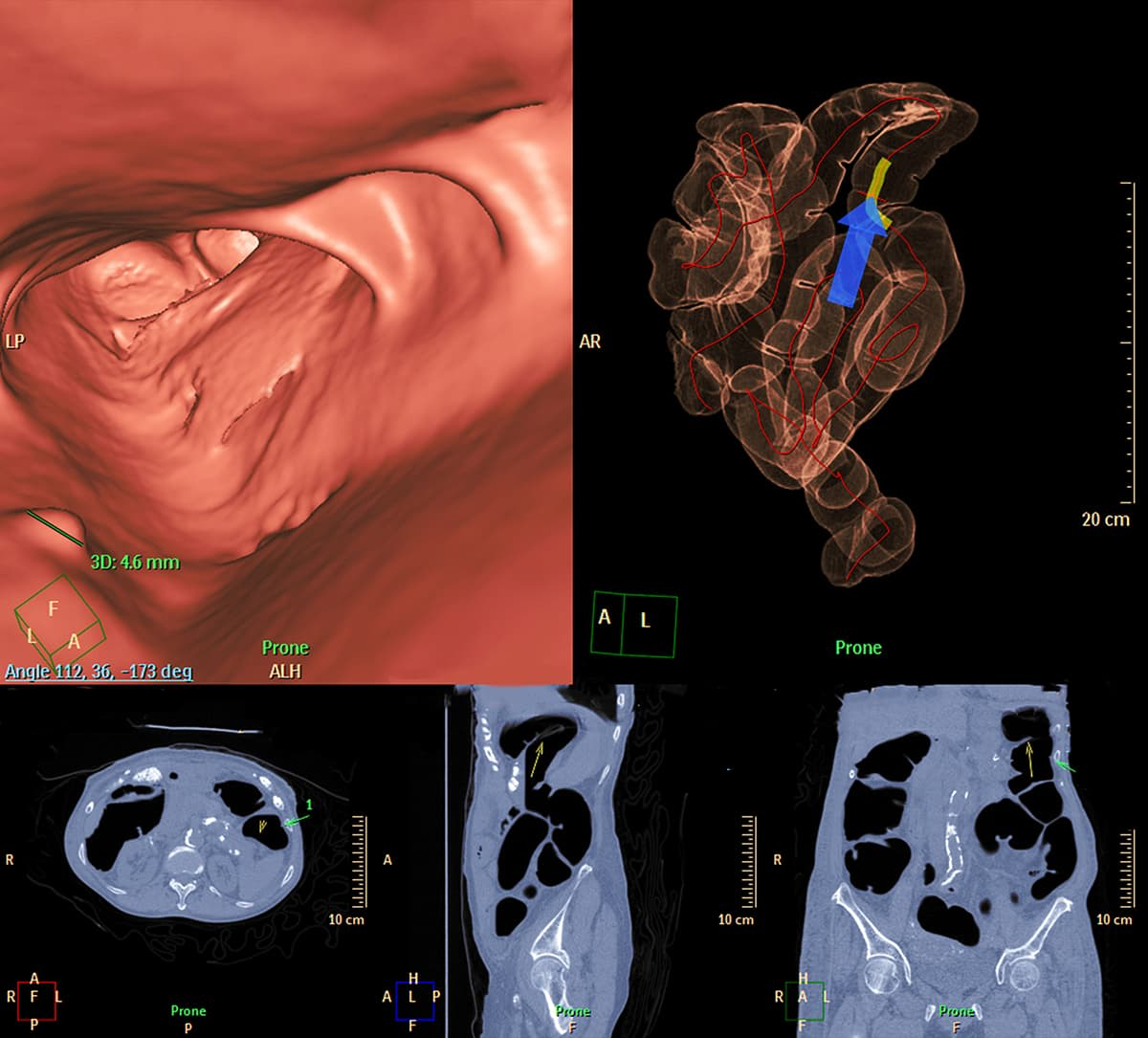 a screen displaying a ct colonography
