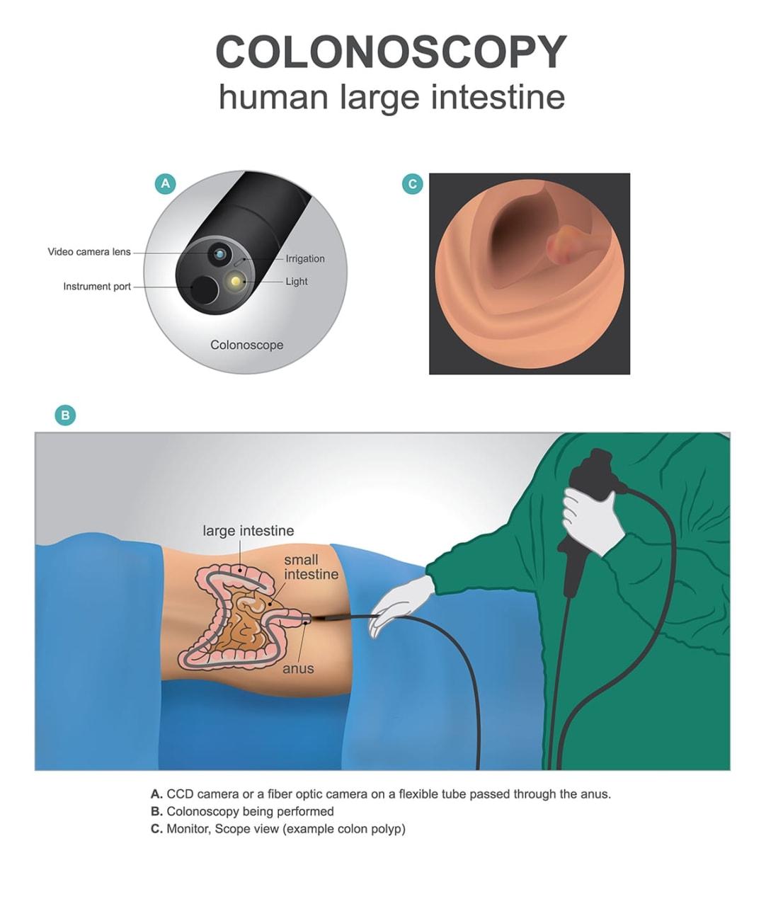 an illustration of a colonoscopy