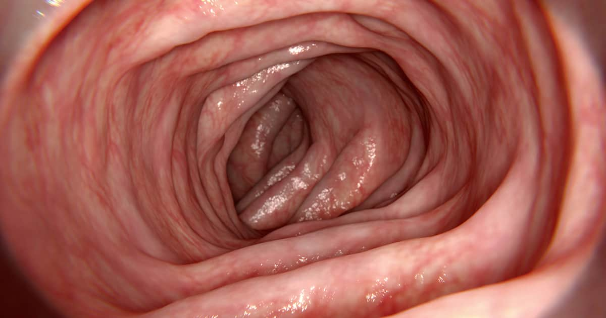 interior of a healthy intestine