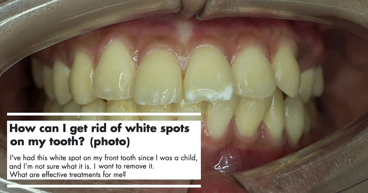 White Spots On Teeth: Reasons and Treatments undefined