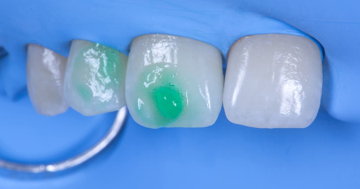 enamel hypoplasia being treated