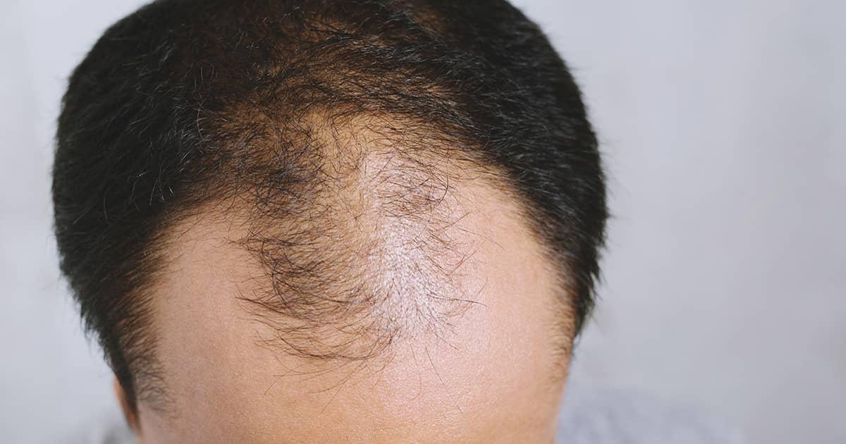 balding asian man