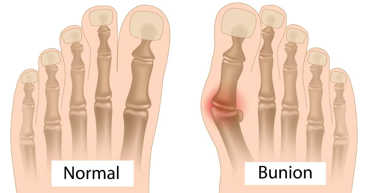 normal foot versus a foot with a bunion
