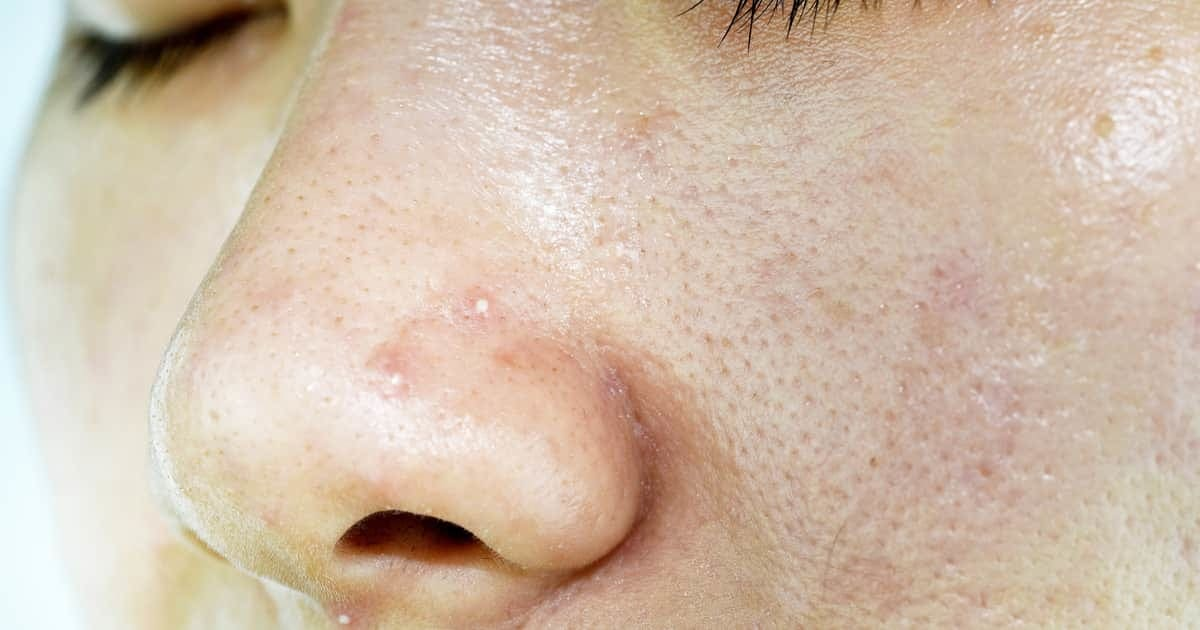 woman with whiteheads on her face