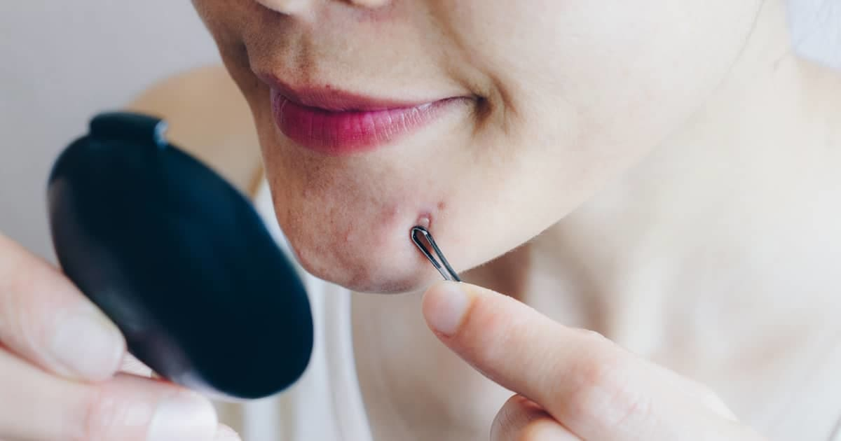 woman extracting pimples with a tool