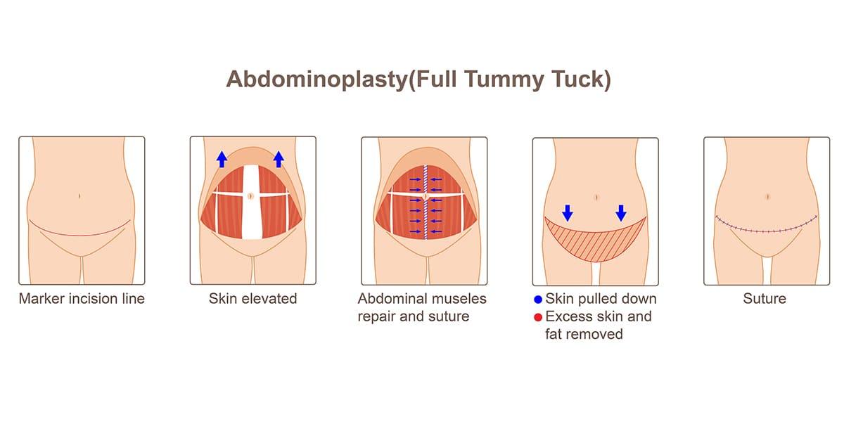 tummy tuck process diagram