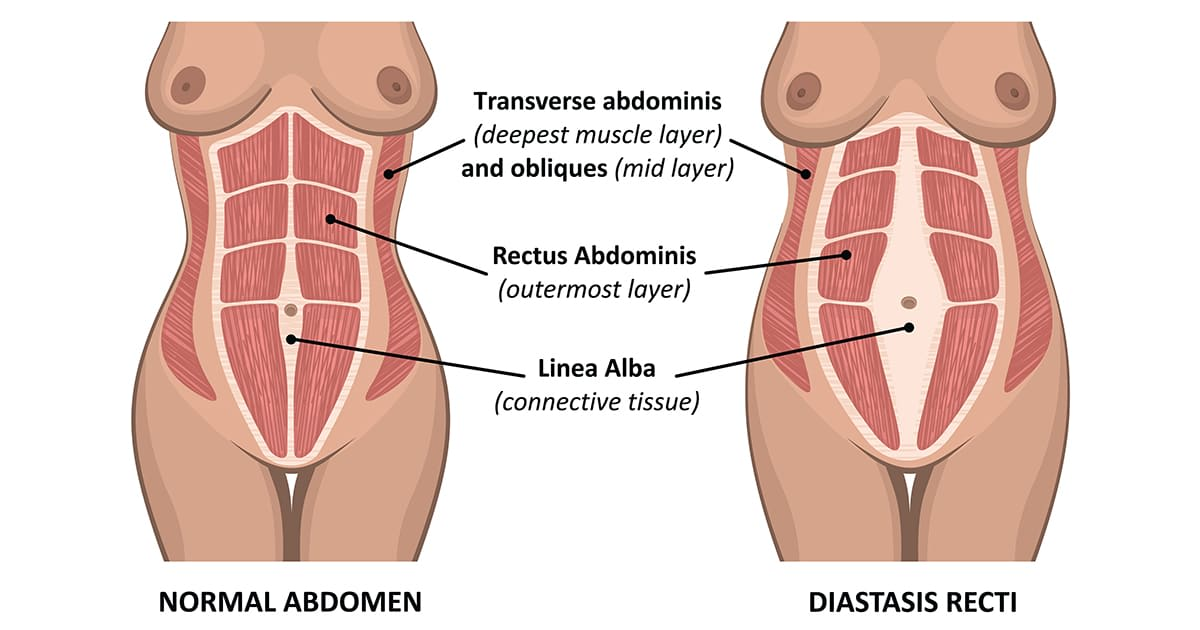 separation of abdominal muscles after pregnancy