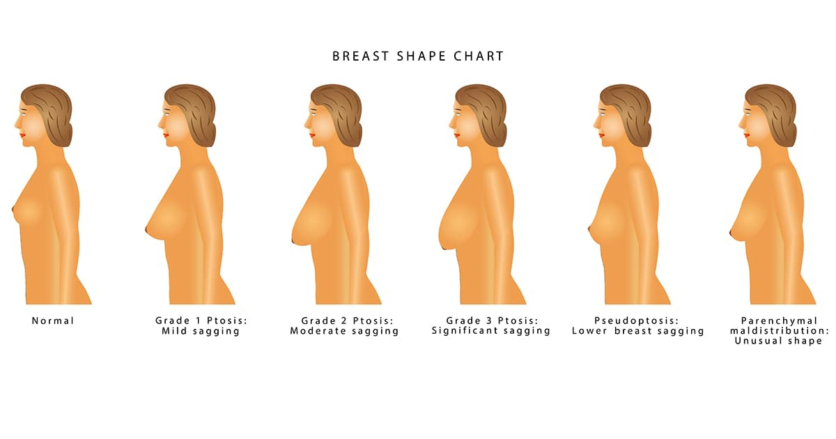 different types of breast sagging after pregnancy