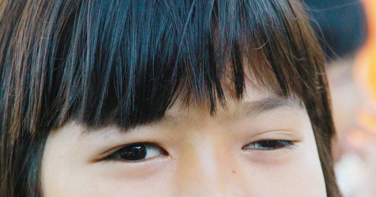 ptosis in a child