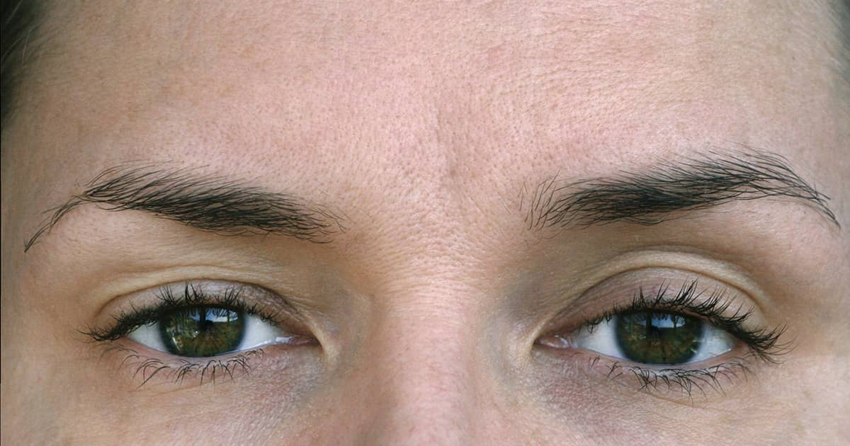 ptosis in the eyes of a woman