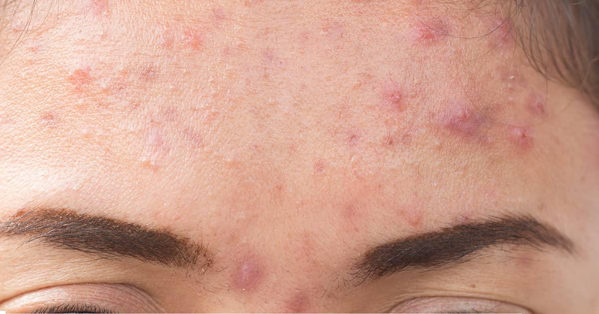 acne on a girl