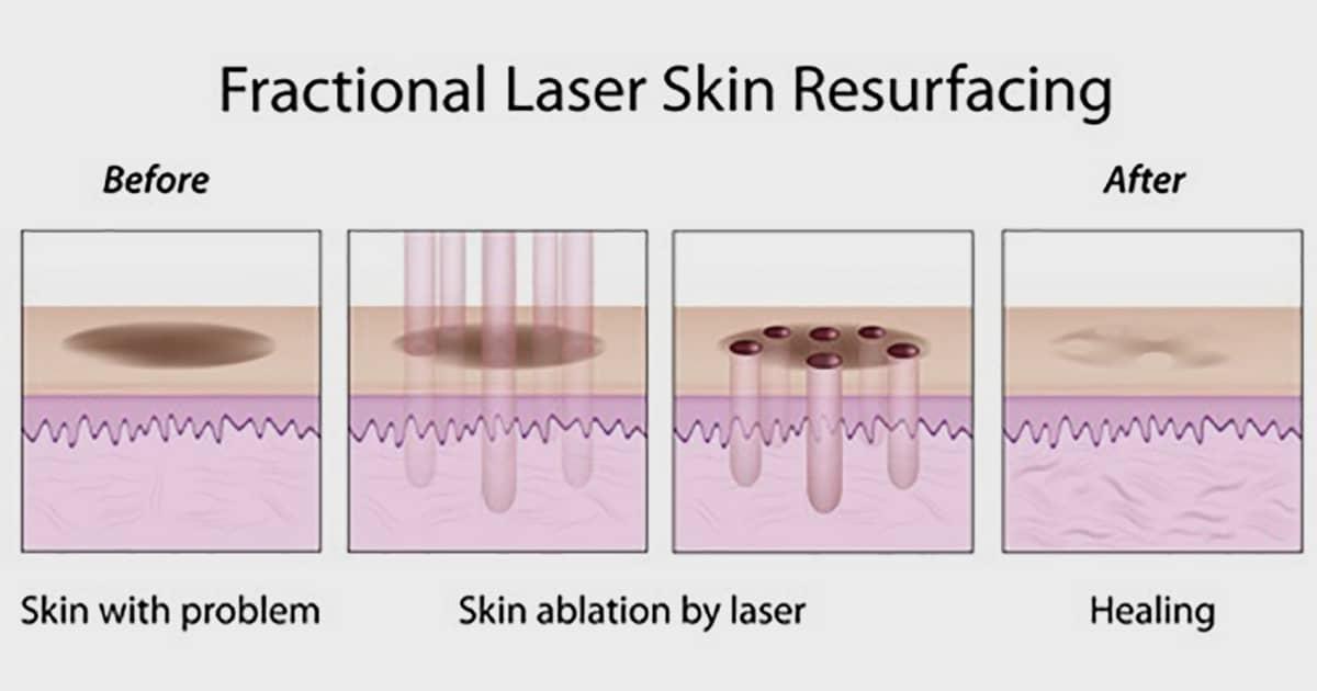 fractional laser treatment medical illustration