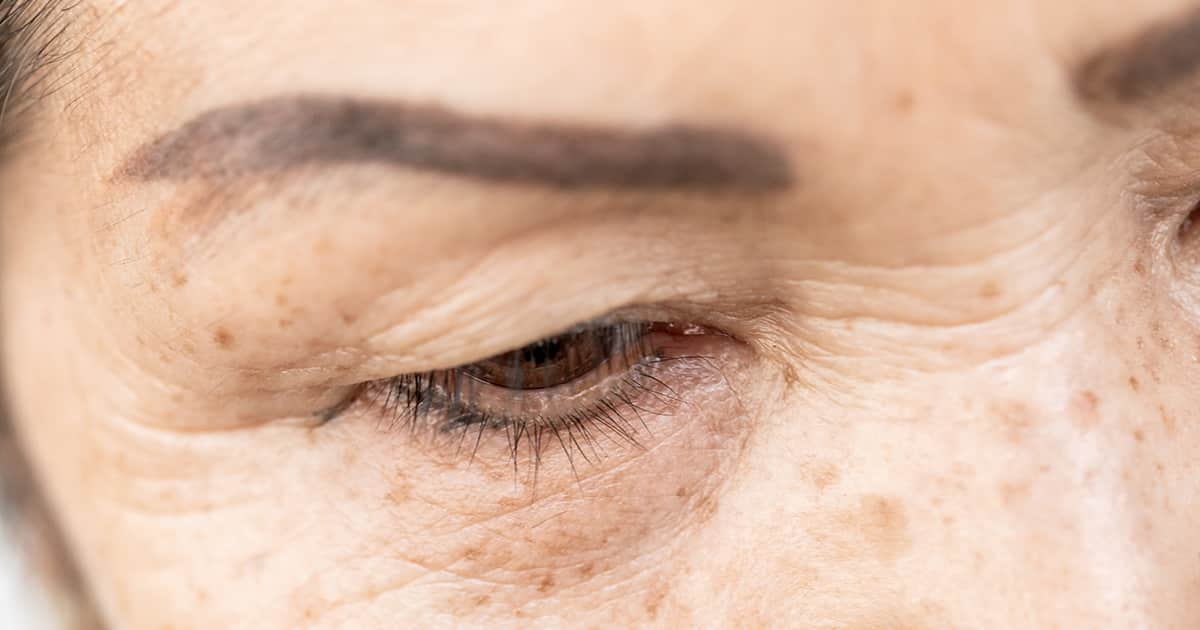 a woman with wrinkles in her eye area and hollow upper eyelids