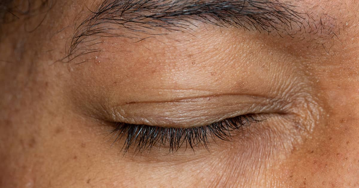 a closed eye with wrinkles