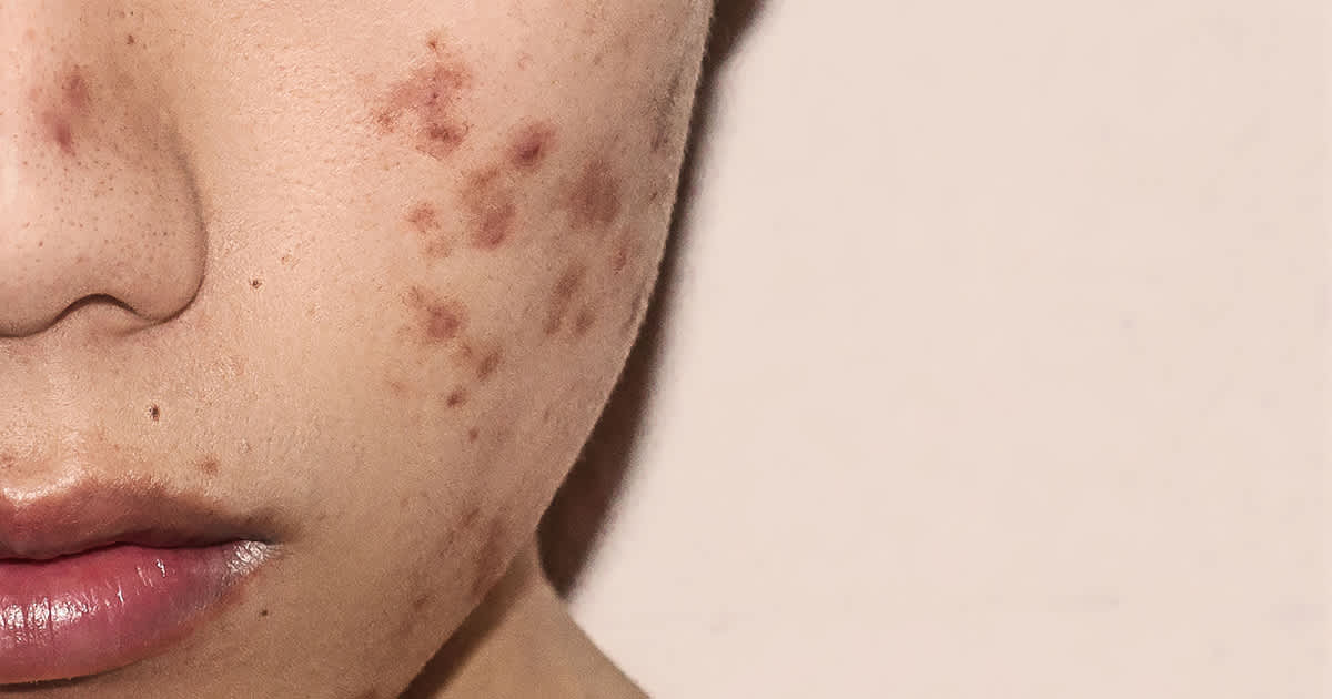 acne on a young womans face