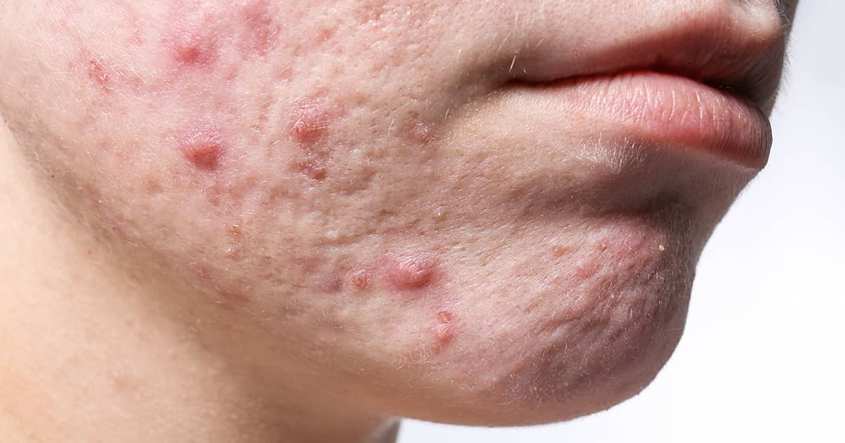 Treating Active Acne Versus Acne Scars: The Differences Explained  undefined