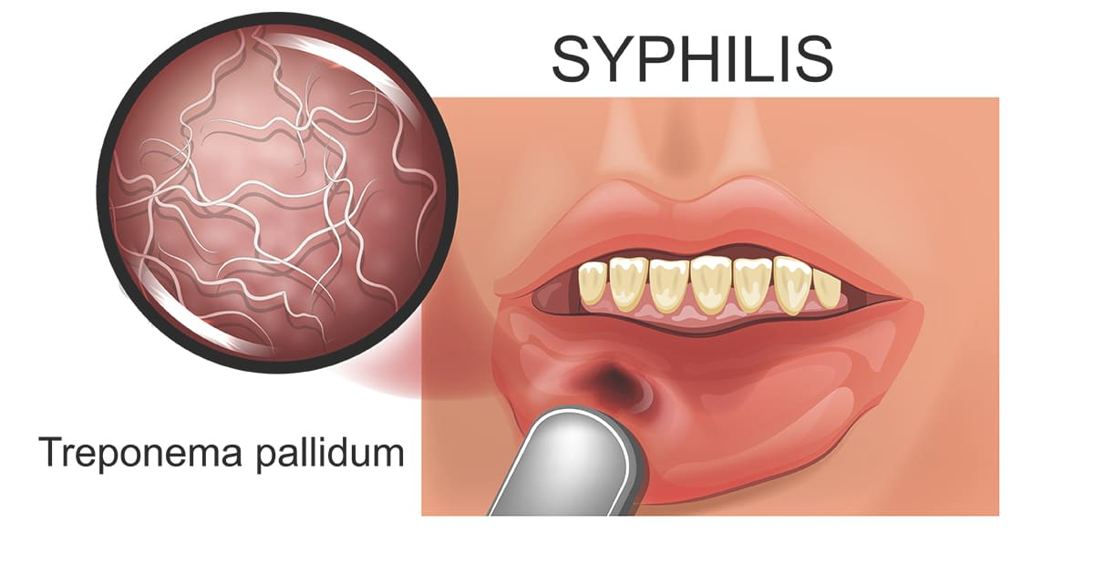 syphilis on a lip illustration