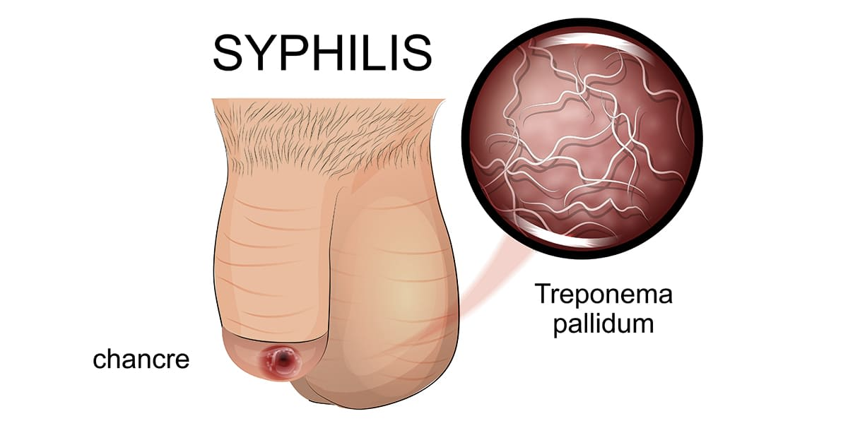 illustration of a syphilis chancre on genitals
