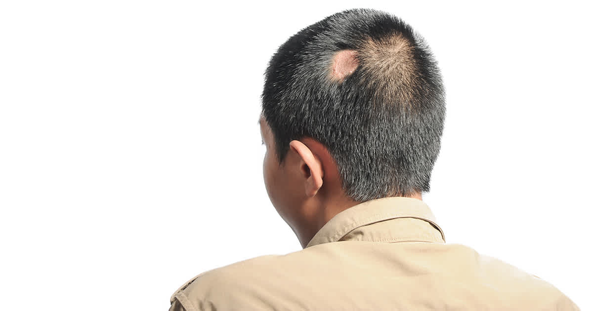 a man with a patch of missing hair