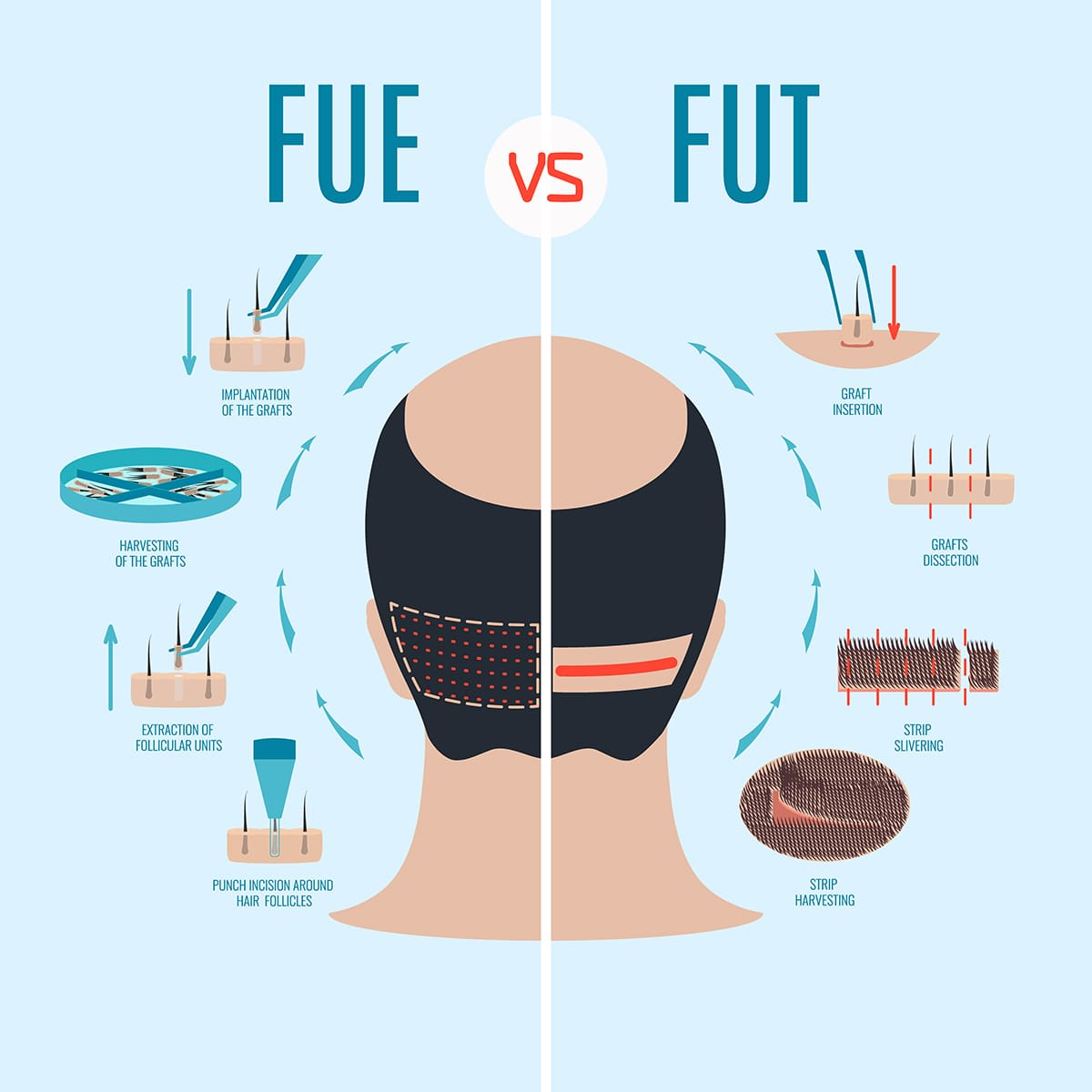fue versus fut treatment for balding