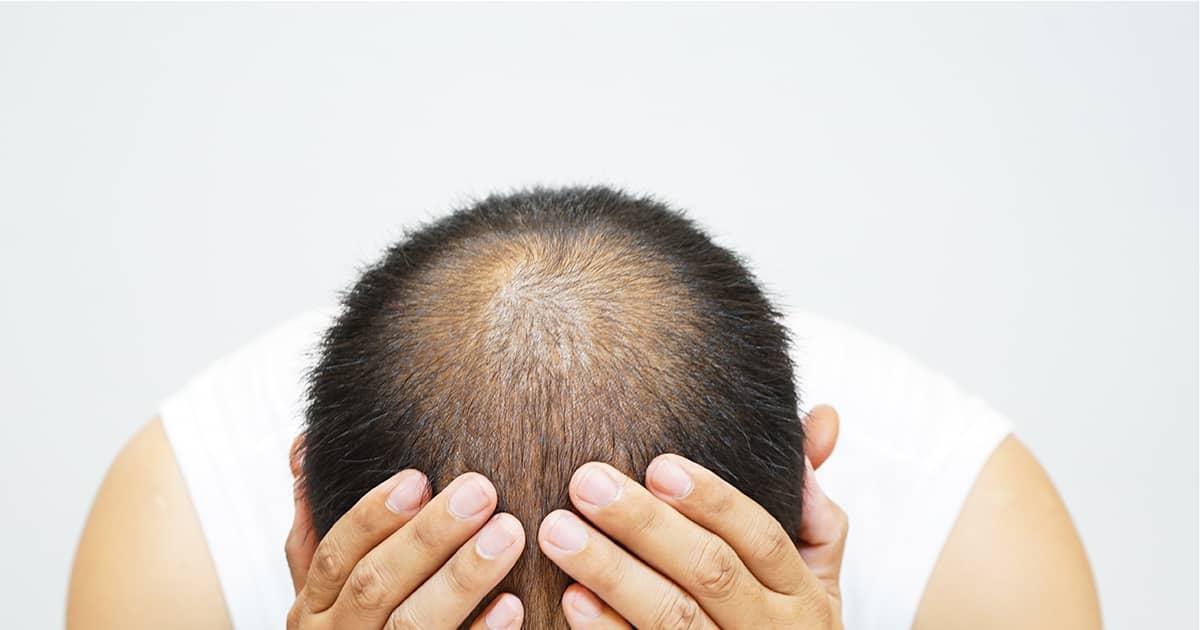 the head of a balding man