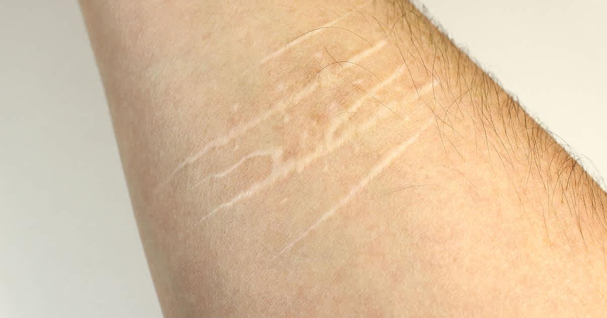 a man with self harm scars on an arm