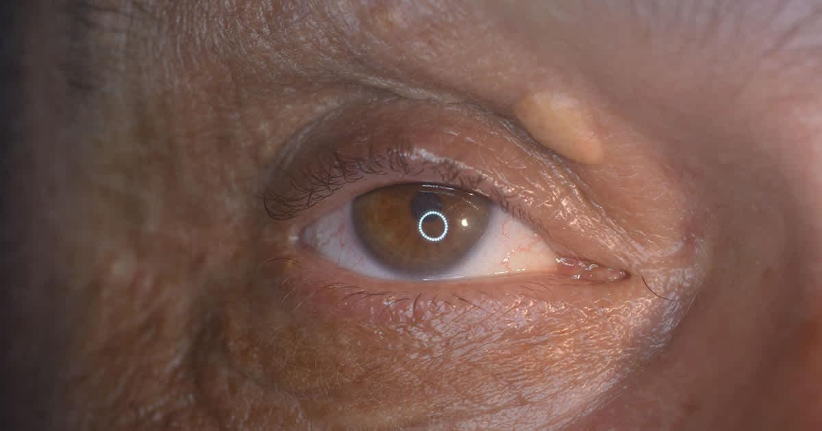 a xanthelasma on an eye