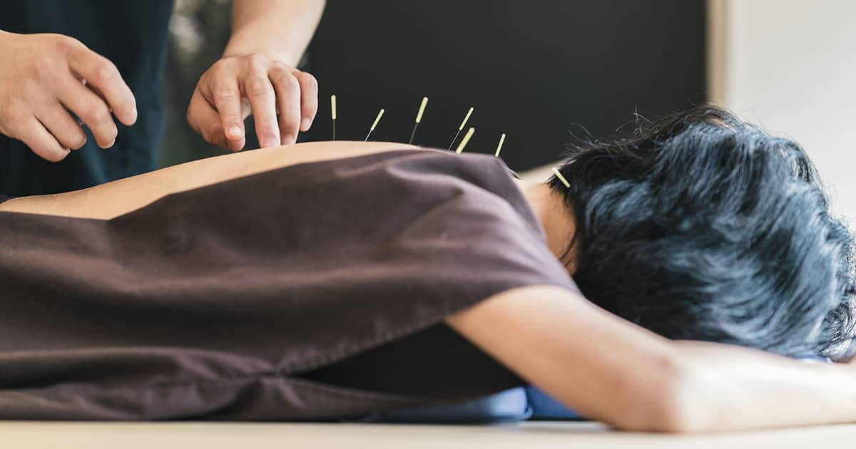 patient in a robe receiving acupuncture