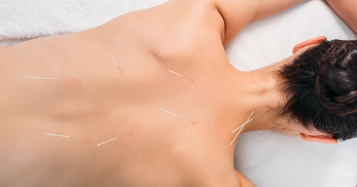 acupuncture on a womans back